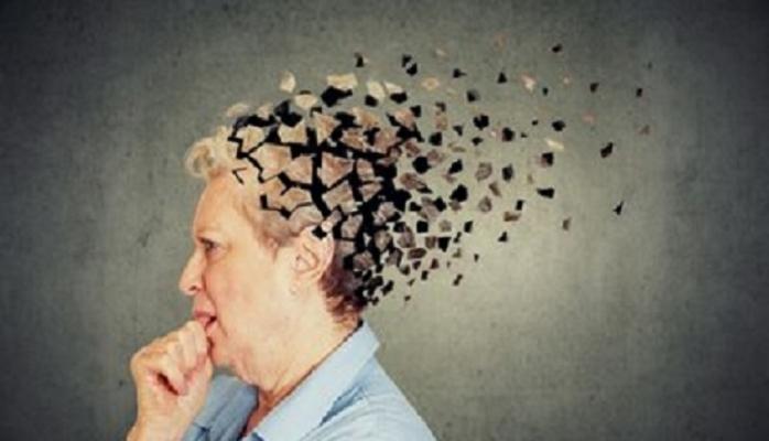 Alzheimer teşhisinde sona geliniyor